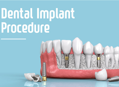 Step By Step: Two Stage Dental Implant Procedure From Your Family & General Dentist in Beaverton, OR