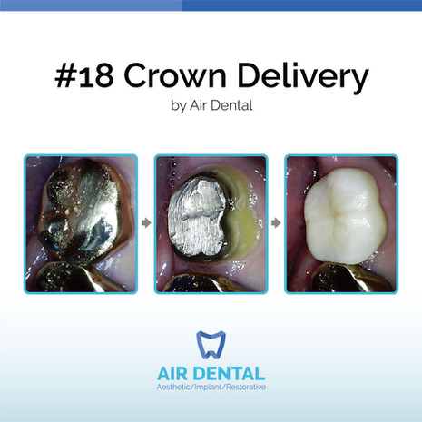 #18 Crown Delivery
