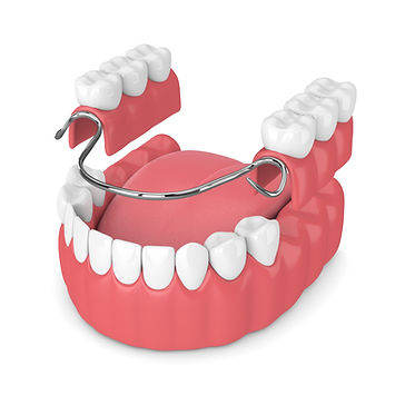 partial denture Puyallup Park Dental Emergency Implants Braces Invisalign 13909 Meridian East, Suite A-1 Puyallup, WA 98373