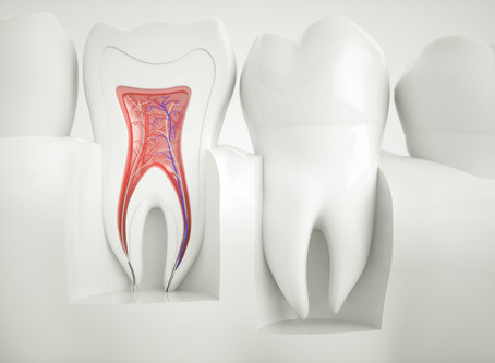 People in Portland, Gresham, Happy Valley, Milwaukie Ask: Do I Need A Root Canal?