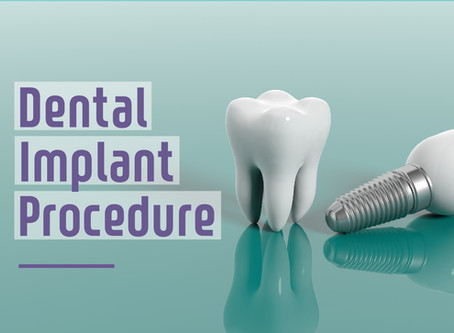 Step By Step: Two Stage Dental Implant Procedure in Glen Ellyn | Dental care of Glen Ellyn