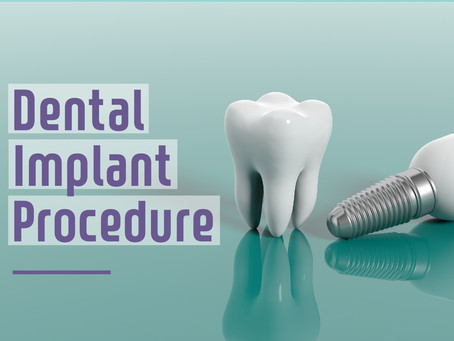 Step By Step: Two Stage Dental Implant Procedure - Learn From General Dentist in Glen Ellyn, IL