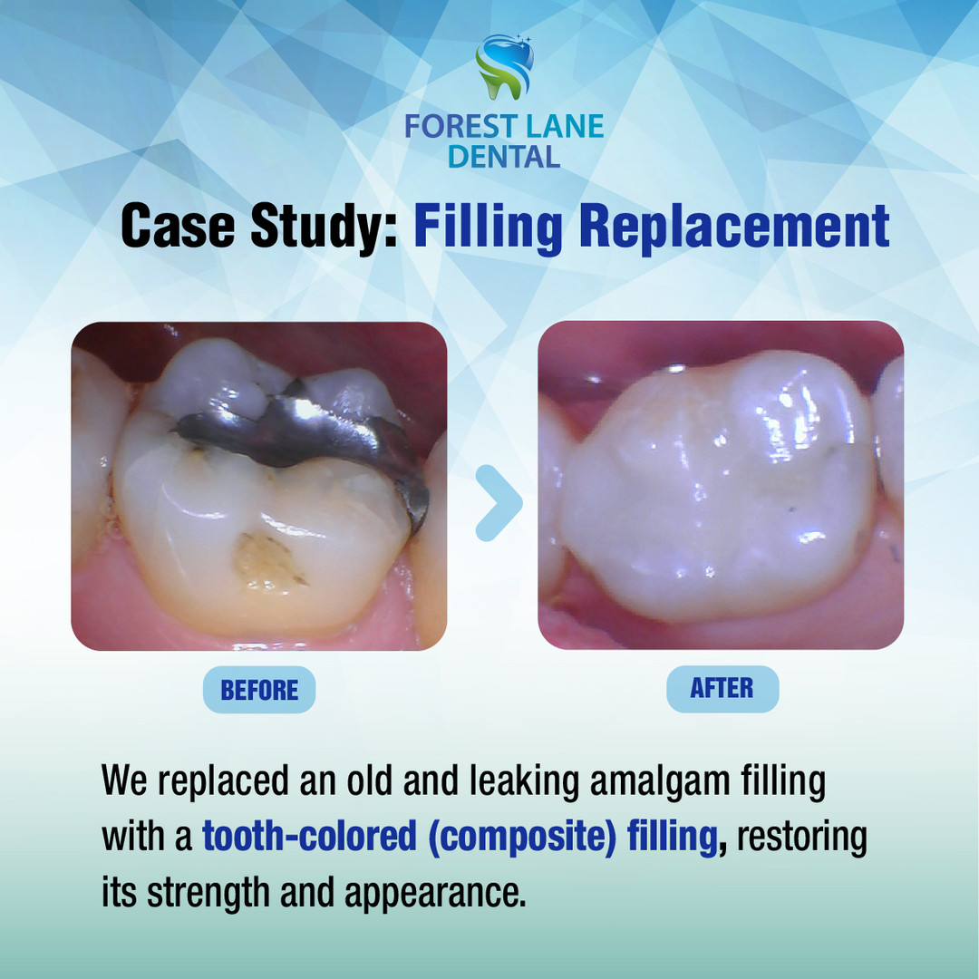 Filling Replacement