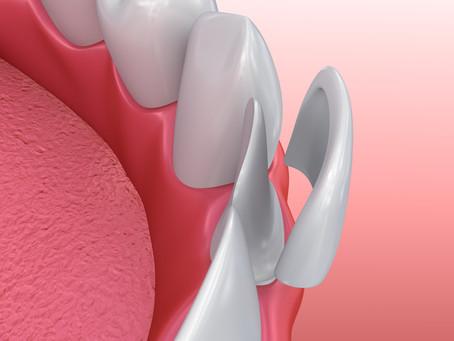 Your General and Cosmetic Dentist in Auburn, Washington Explains Dental Veneers
