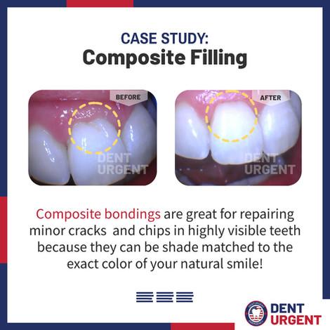 Composite Filling 2.jpg