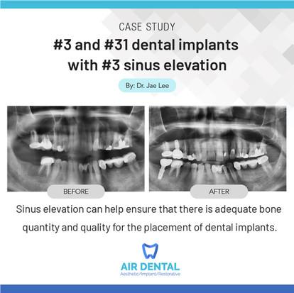 Air Dental_#3 and #31 dental implants wi