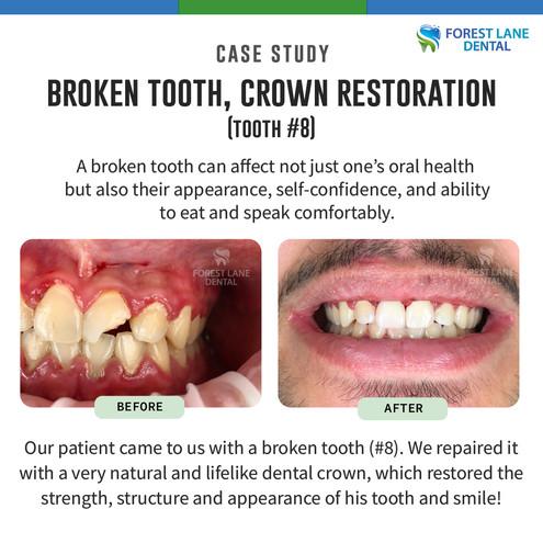 Broken Tooth, Crown Restoration