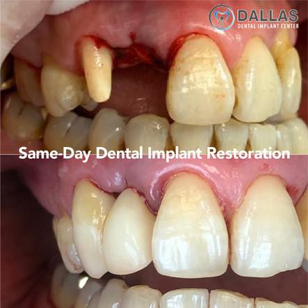 Same-Day Dental Implant Restorationration