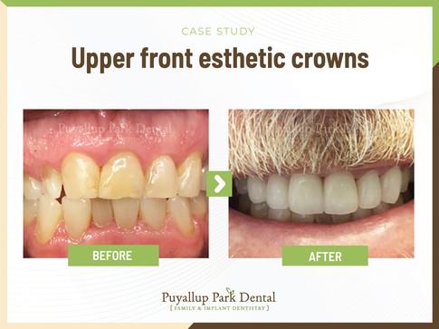 Upper Front Esthetic Crowns