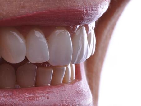 Lentes de contato dental: o que são e como funcionam?