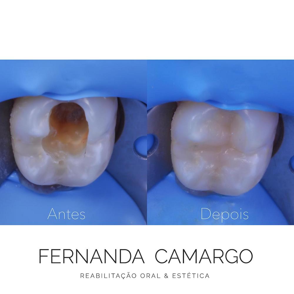 imagem comparando um dente antes e depois de uma restauração direta