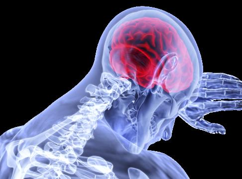 Meningite: aprenda seus tipos, sintomas, causas e tratamento