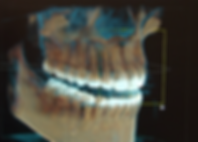3d-dental-xray-1.png