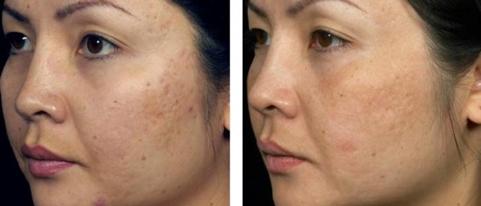fraxel-acne-scars-3a-700x300.jpg