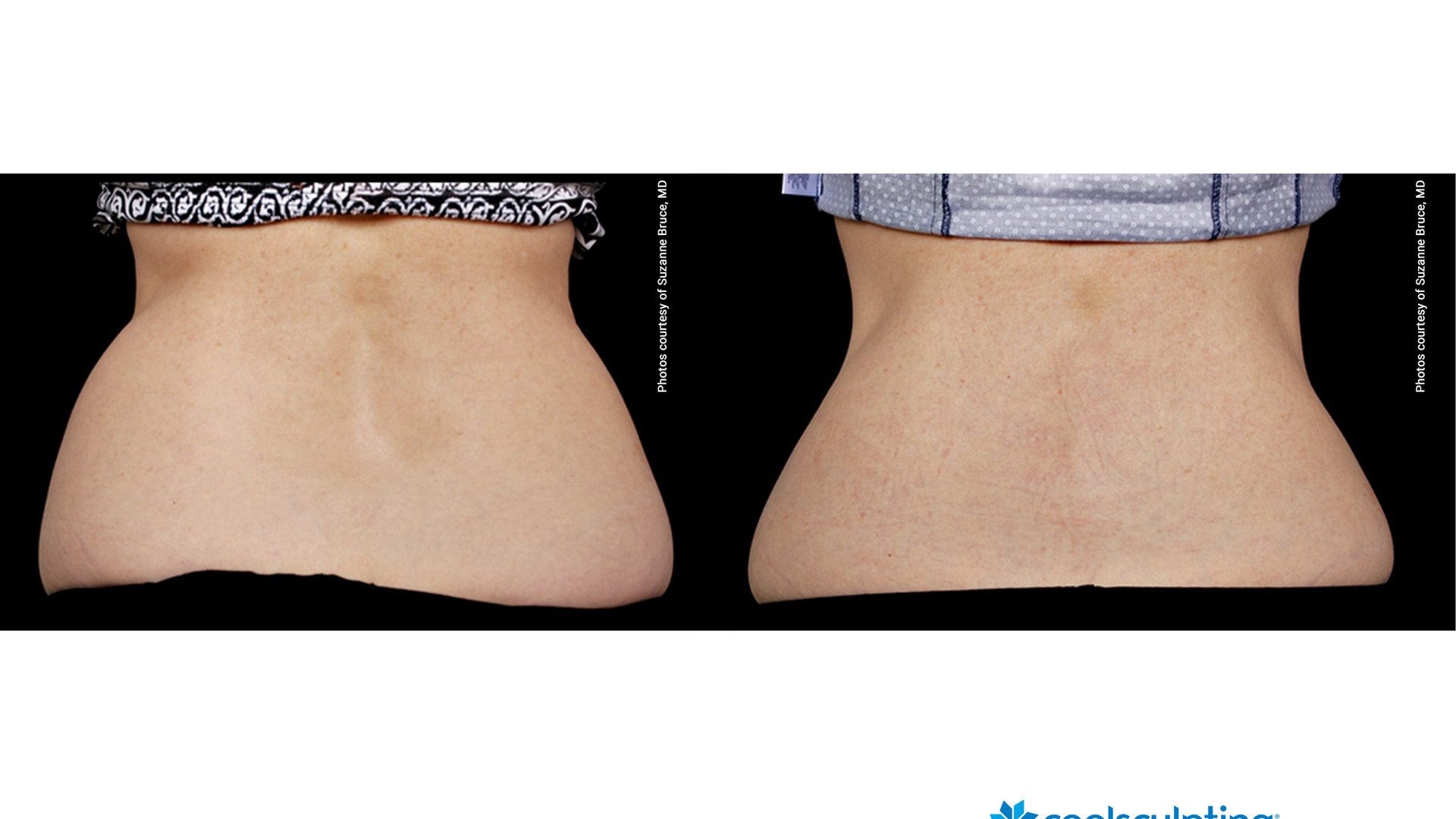Coolsculpting before and after 3.jpg
