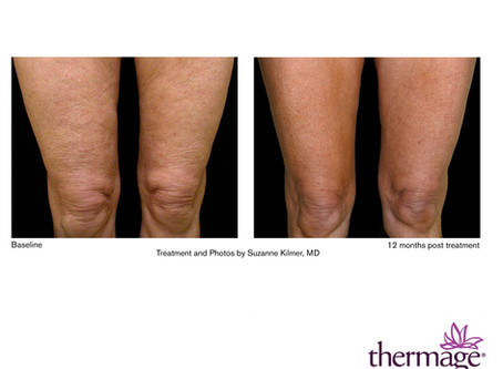 July Specials - 15% Off Thermage Body Treatments