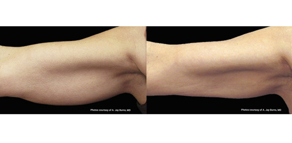Coolsculpting before and after 2.jpg