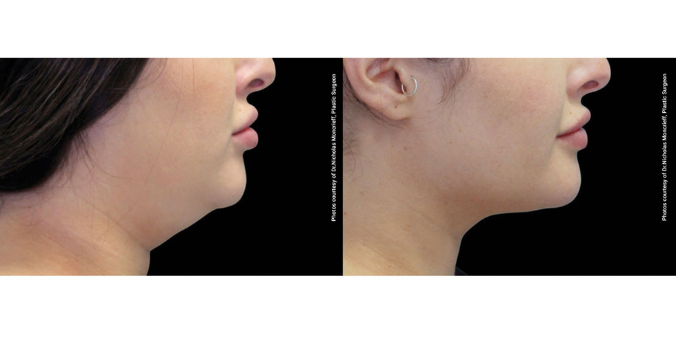 Coolsculpting before and after 5.jpg