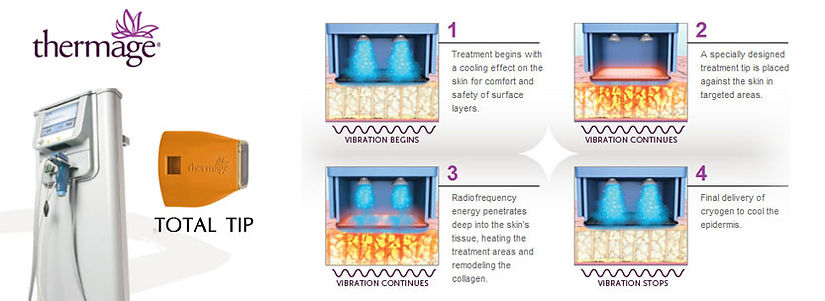 Thermage CPT (Comfort Pulsed Technology) Singapore