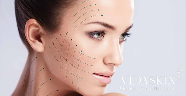 Thread Lift Singapore | V-Shaped face - VIDASKIN