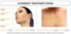 Ultherapy Non-Surgical Facelift Singapore