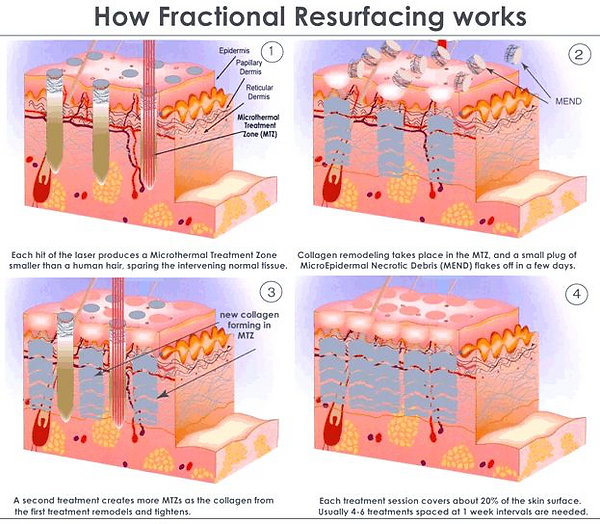 Fractional Resurfacing for Acne Scar Removal & Treatment