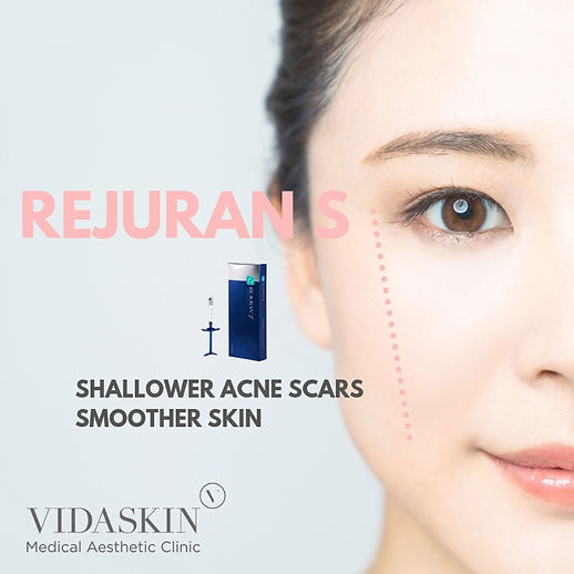 REJURAN S DNA extract for acne scar healing