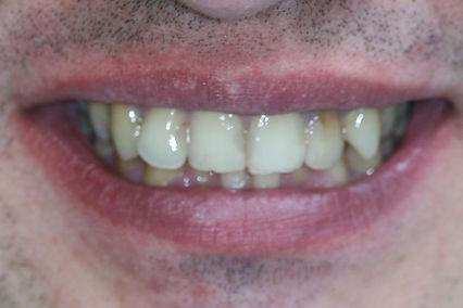 Пациент 5-3.jpg