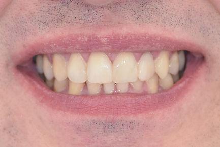 Пациент 5-4.jpg