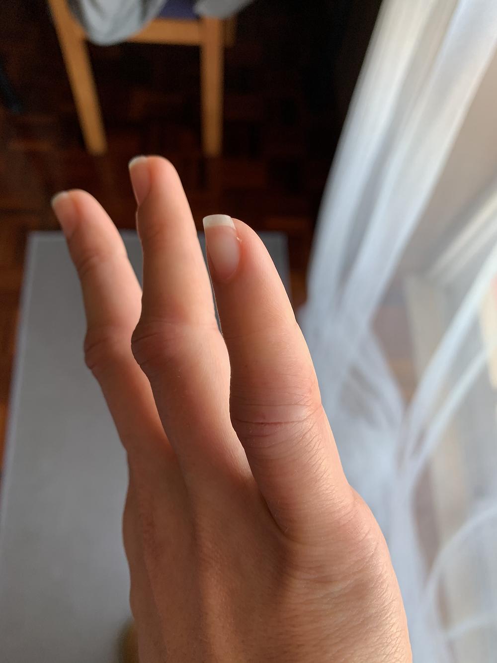 Mão com frieira em Portugal
