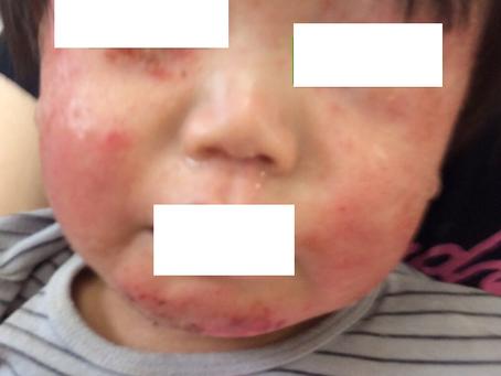 ツルツルすべすべに、小児アトピー性皮膚炎から・・