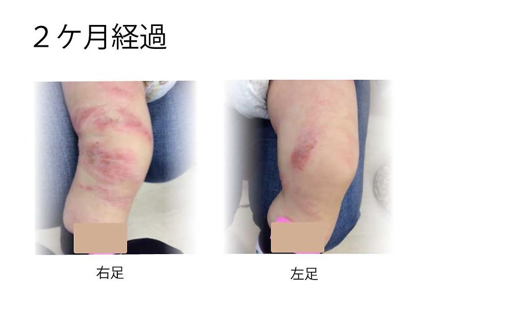 小児アトピー性皮膚炎治療 2ケ月経過