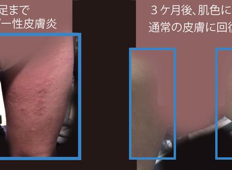 ステロイド剤なしで、小児アトピー性皮膚炎治療