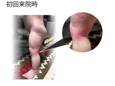 小児アトピー性皮膚炎、治療経過のご紹介
