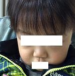 小児アトピー性皮膚炎 治りました