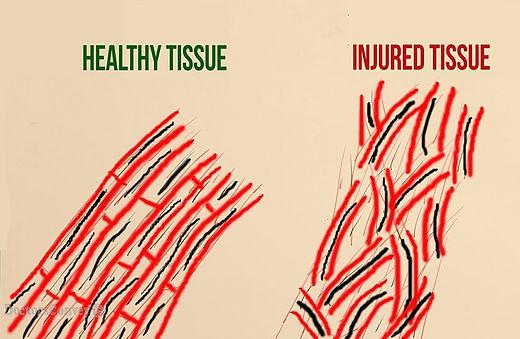 1512-Mechanical_Pain-Tissue-Injury-min.j
