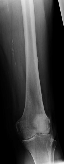 Biphosphonate fracture femur_edited