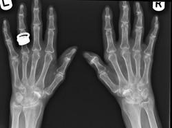 Primary hyperparathyroidism radial side bone resorption_edited