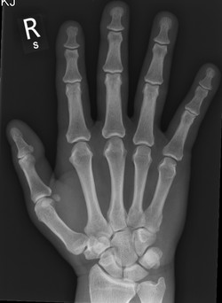 M_HAND_Normal_edited