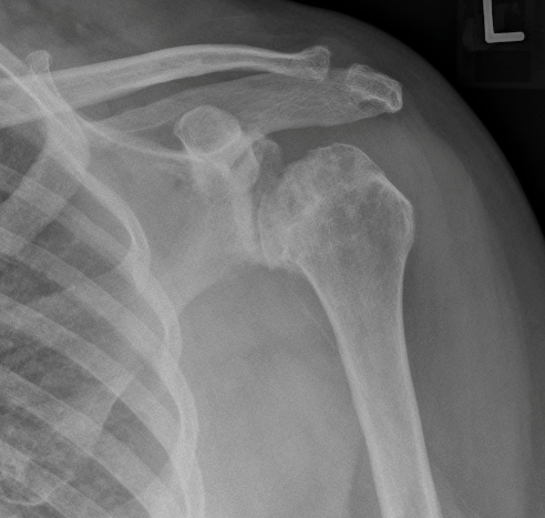 shoulder osteonecrosis and OA_edited