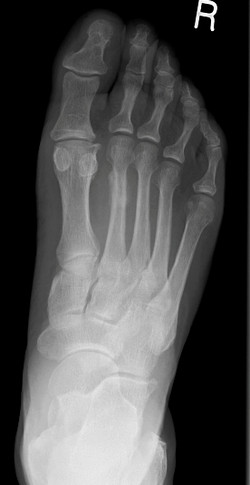 Stress fracture 2MT_edited