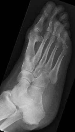 Normal foot RT_edited