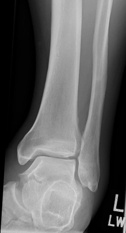 M_ANKLE_20160921_135432_edited