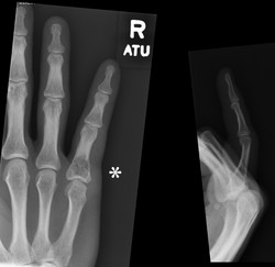 ball hit end of finger 34 m fracture through enchondroma_edited