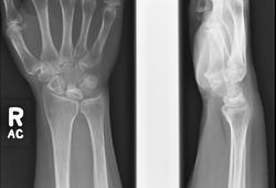 Kienbock disease plain film and MRI quiz_edited