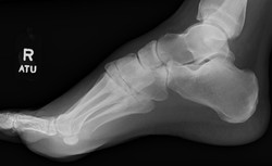 Navicular fracture_edited