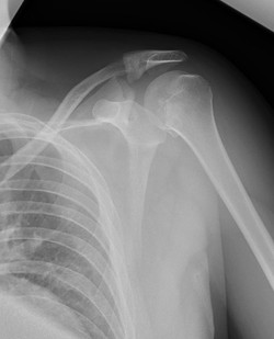 posterior dislocation 1 fracture acromion_edited