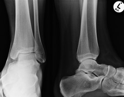 M_ANKLE_20151216_122604_edited