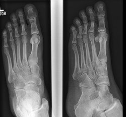 Stress fracture_edited