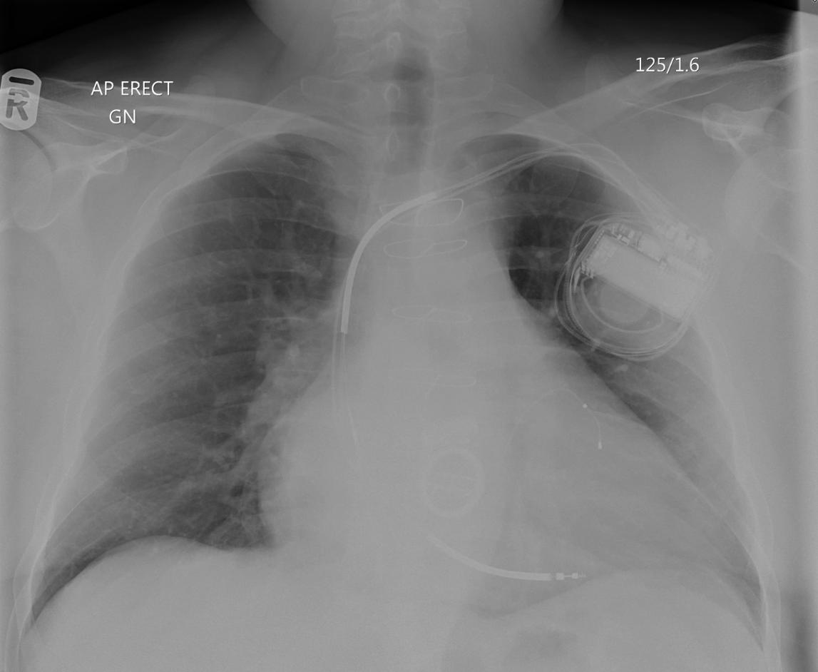 Chest plain film dislocated shoulder left_edited